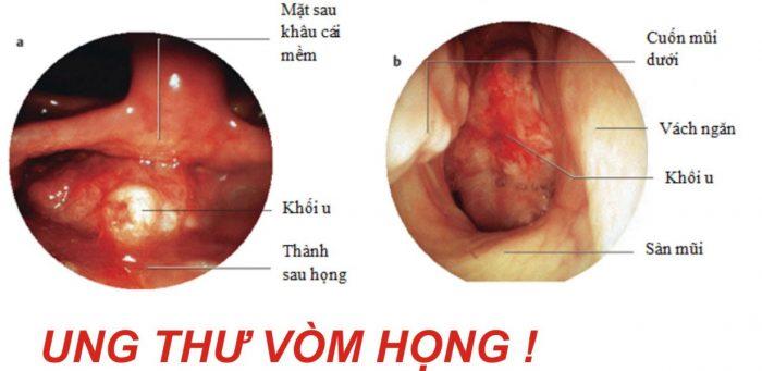 Bệnh ung thư vòm họng có nhiều triệu chứng để nhận biết