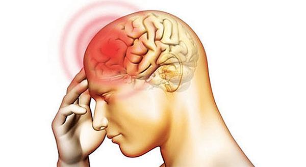Ung thư vòm họng di căn lên não thường khiến bệnh nhân đau đầu dữ dội