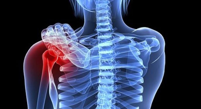 Cách nhận biết bệnh ung thư xương chuẩn nhất dành cho người bệnh