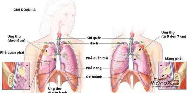 Điều trị ung thư phổi giai đoạn 2 có khả thi không?