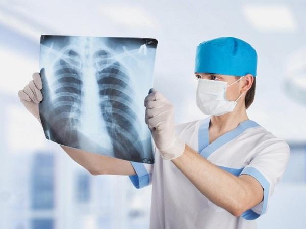 Ung thư phổi giai đoạn 2 tiến triển rất nhanh chóng