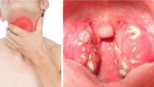 Ung thư vòm họng khiến sức khỏe của bạn bị giảm sút