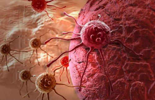 Phương pháp tế bào miễn dịch điều trị ung thư