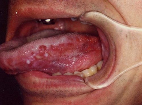 8 dấu hiệu nhận diện ung thư lưỡi và cách phòng bệnh hiệu quả