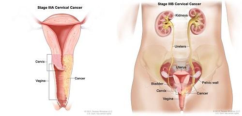 Bệnh ung thư cổ tử cung giai đoạn 3b