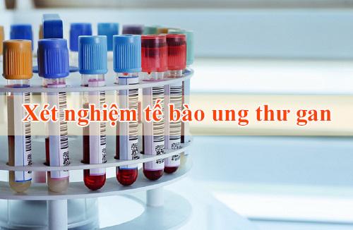Các xét nghiệm tế bào ung thư gan