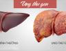 Cách nhận biết bị ung thư gan. Phác đồ hóa trị bệnh ung thư gan