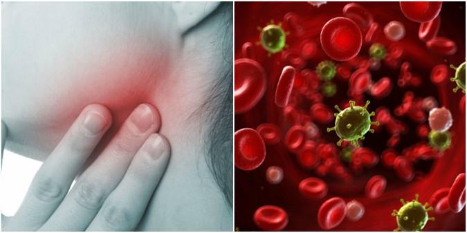 Chữa bệnh ung thư máu bằng thuốc Nam có cho hiệu quả