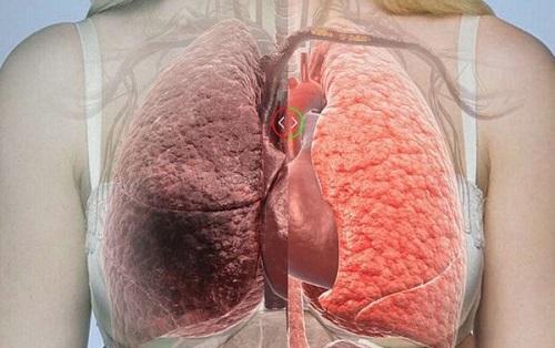 Dấu hiệu ung thư phổi giai đoạn cuối
