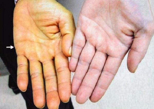 Vàng da là dấu hiệu ung thư gan giai đoạn đầu dễ nhận biết