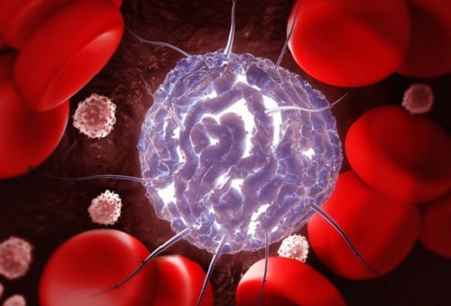 Điều trị ung thư bằng tế bào gốc