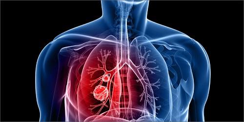 Điều trị ung thư phổi giai đoạn cuối bằng hóa trị