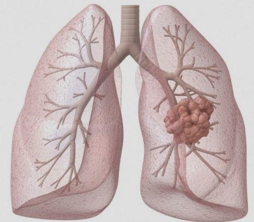 Điều trị ung thư phổi giai đoạn 4 bằng phương pháp nào hiệu quả
