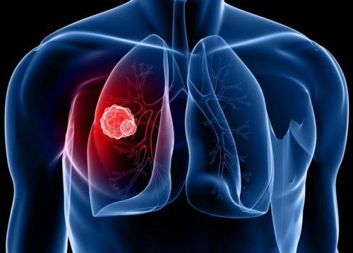 Điều trị ung thư phổi giai đoạn cuối