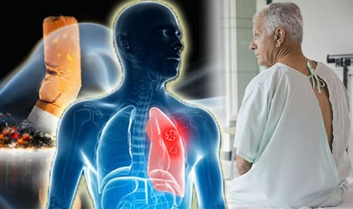 Điều trị ung thư phổi ở đâu tốt nhất