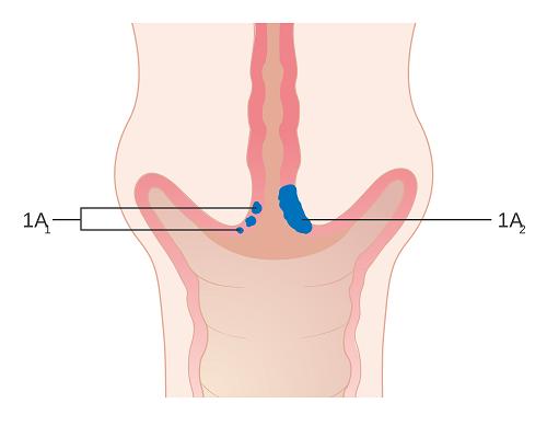 Giai đoạn đầu của ung thư cổ tử cung