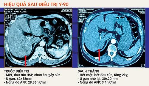 Hiệu quả điều trị ung thư gan bằng hạt vi cầu