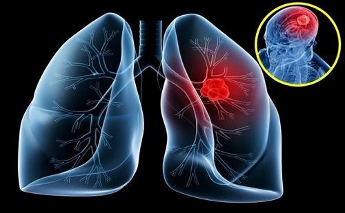 Lương y chữa ung thư phổi bạn đã nghe tên chưa