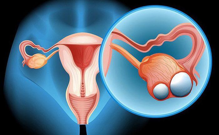 Ung thư buồng trứng là một trong những căn bệnh nguy hiểm mà hiện nay chị em phụ nữ thường mắc phải