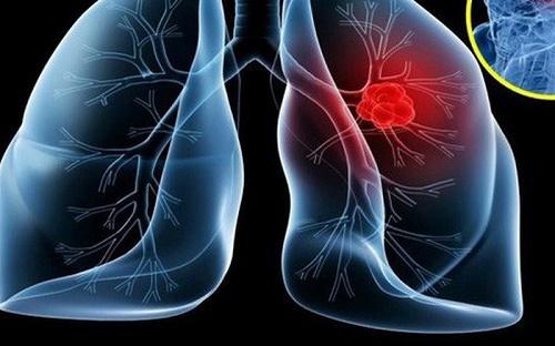 Bài thuốc Nam chữa ung thư phổi di căn từ bán chi liên