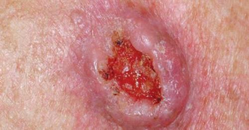 Thuốc điều trị bệnh ung thư da rất đa dạng