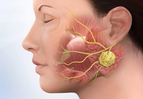 Bệnh ung thư vòm họng khá phổ biến ở Việt Nam.