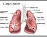 Triệu chứng của ung thư phổi di căn - Nguyên nhân và cách phòng trị