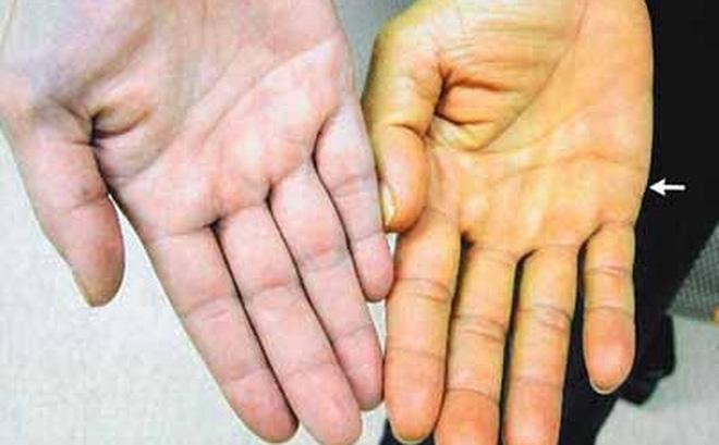 Vàng da - triệu chứng ung thư gan giai đoạn đầu