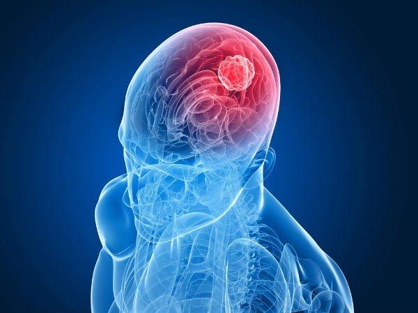 Triệu chứng ung thư não giai đoạn đầu khiến bệnh nhân sống được bao lâu?