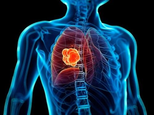Ung thư phổi và triệu chứng ung thư phổi