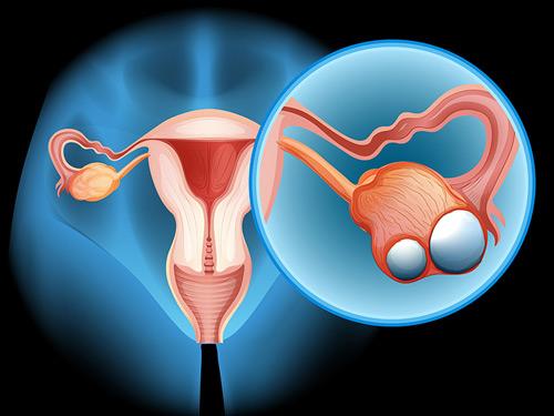 Ung thư buồng trứng là bệnh phổ biến thứ 5 ở phụ nữ.