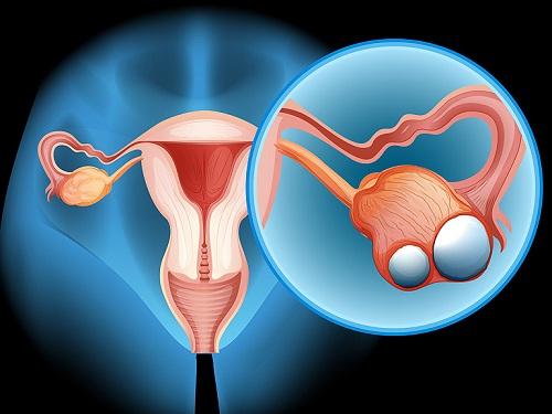 Ung thư buồng trứng giai đoạn cuối sống được bao lâu?