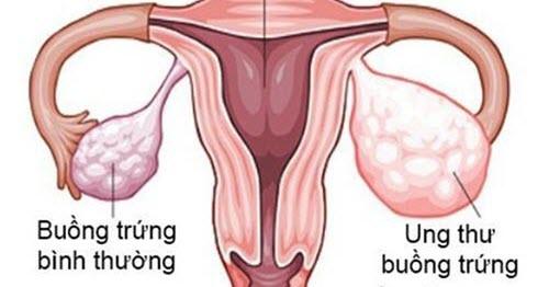 Ung thư buồng trứng là căn bệnh phổ biến ở phụ nữ.