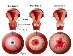 Ung thư cổ tử cung có nguy hiểm không?