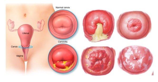 Ung thư cổ tử cung có thai được không? Khi mang thai phải làm gì?