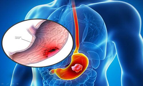 Bệnh ung thư dạ dày có chữa khỏi được không?