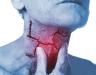 Ung thư hạ họng sống được bao lâu? Cách điều trị bệnh tốt nhất