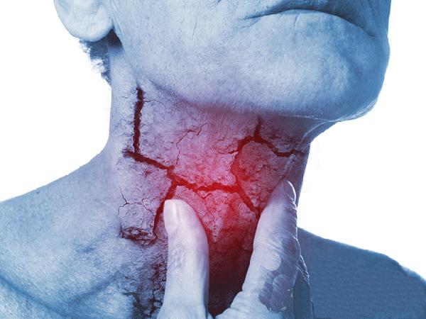 ung thư hạ họng sống được bao lâu