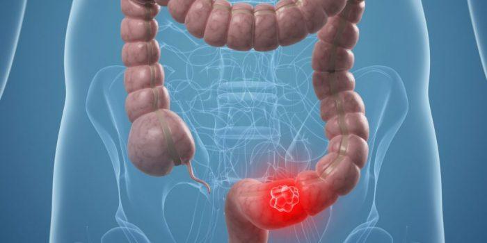 Ung thư trực tràng giai đoạn 2 sống được bao lâu?