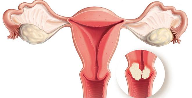 Ăn gì để ngăn ngừa ung thư cổ tử cung? Thực phẩm chữa ung thư hiệu quả