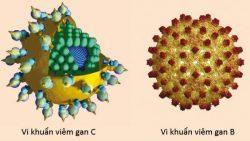 Virus viêm gan B và C có liên quan tới bệnh ung thư gan.