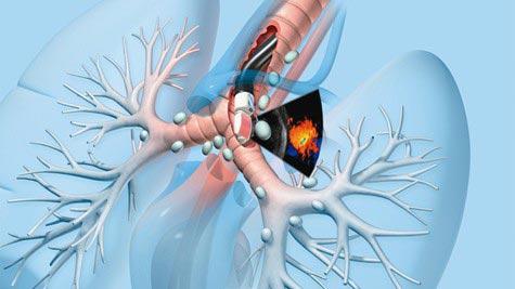 Ung thư khí quản giai đoạn cuối có do căn sang các bộ phận khác