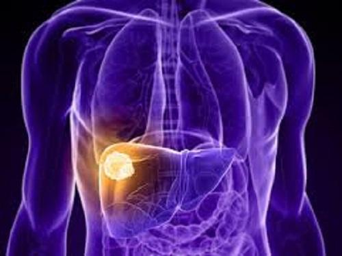 Bệnh ung thư gan