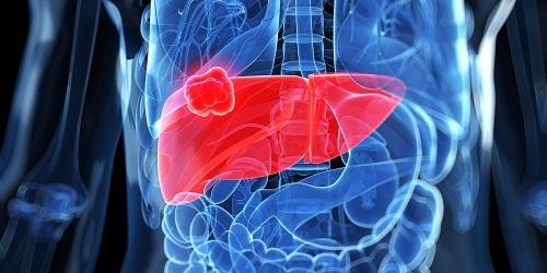 Bệnh ung thư gan sống được bao lâu? Phương pháp điều trị bệnh