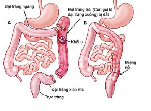 Bệnh ung thư đại tràng giai đoạn 3