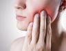 Bệnh ung thư lưỡi có chữa được không? Phương pháp điều trị bệnh