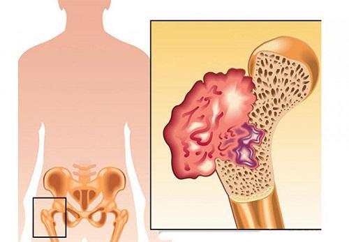Cây thuốc nam chữa bệnh ung thư xương