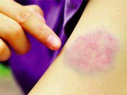 Biểu hiện của ung thư máu là xuất hiện vết bầm tím bất thường ở trên da