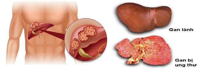 Ung thư gan là biến chứng của xơ gan
