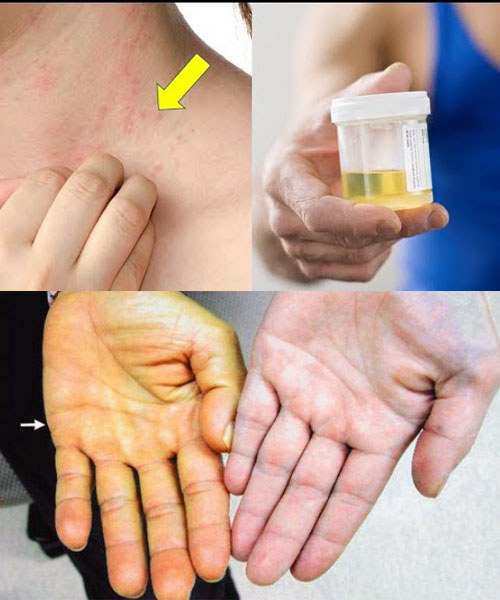 Một số biểu hiệu sớm của bệnh ung thư gan